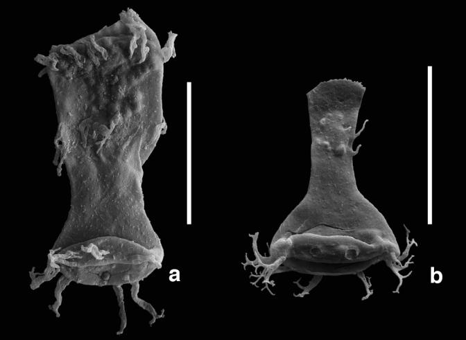 What 415 million year old fossil plankton tells us about heavy metal pollution and extinction